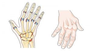 arthritis condition how to avoid it